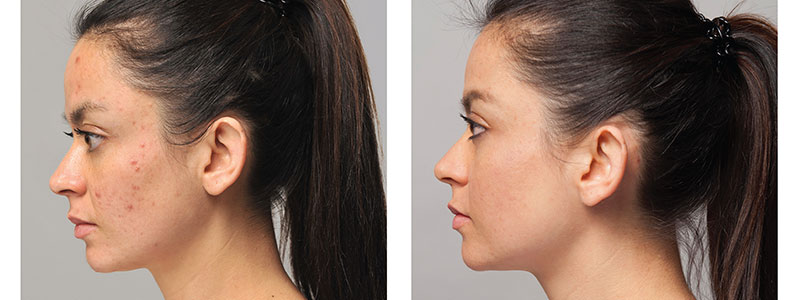 acne-peeling-header